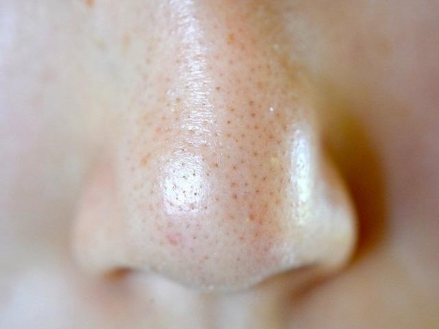 鼻の横の毛穴詰まりが気になる。原因や改善方法は?